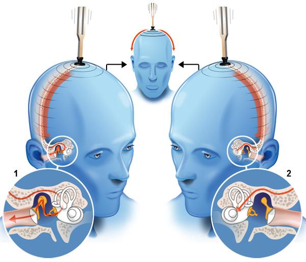 Subjective measure | Cochlea