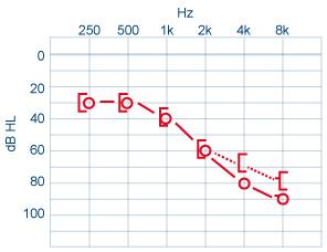 Audiometrie Tonale Acoumetrie Cochlea